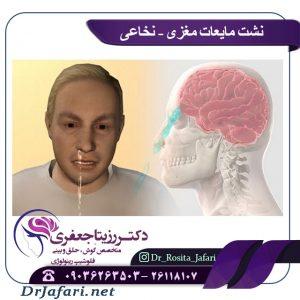 نشت مایعات مغزی-نخاعی