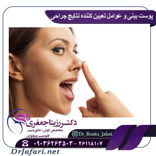 عوامل تعیین کننده نتیجه جراحی بینی