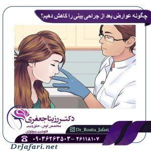 چگونه عوارض بعد از جراحی بینی را کاهش دهیم؟