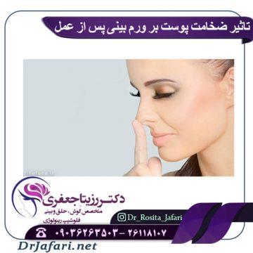 تاثیر ضخامت پوست بر ورم بینی پس از عمل