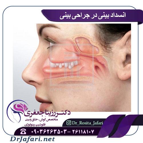 ملاحظات انسداد بینی در جراحی بینی