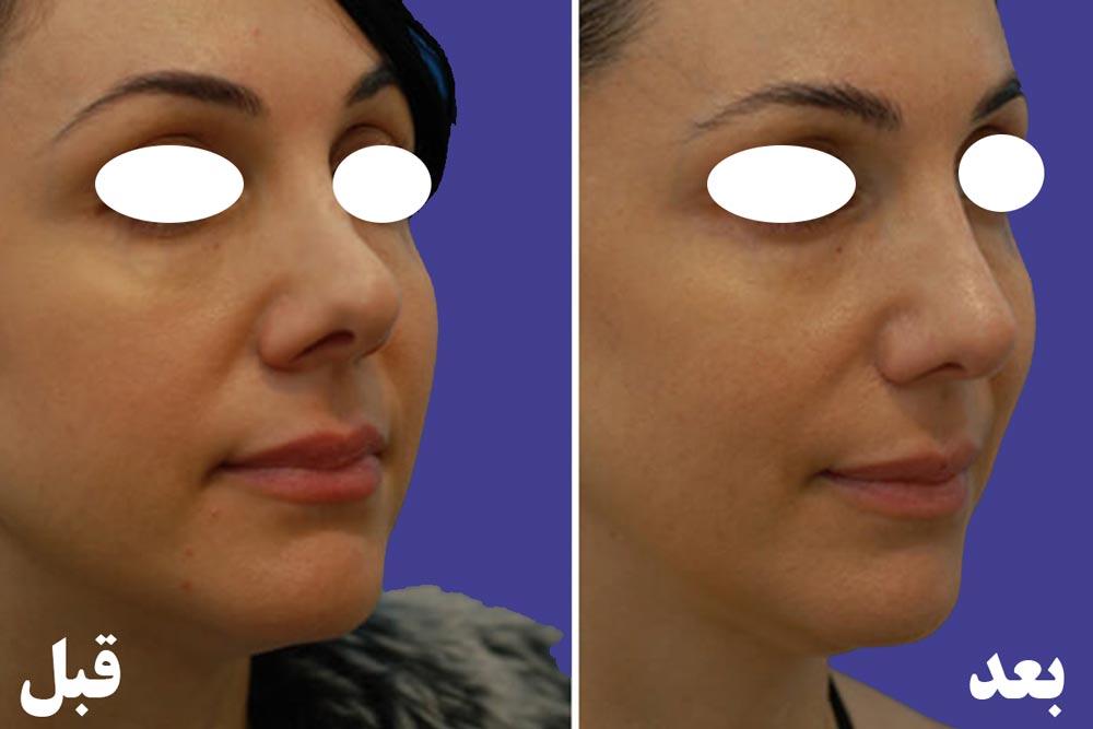 عمل ترمیم بینی قبل و بعد