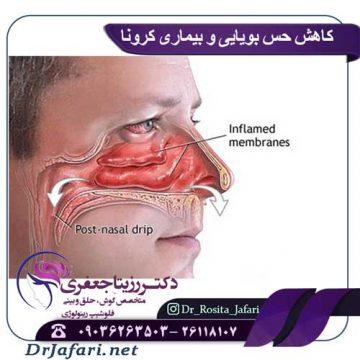 کاهش حس بویایی و بیماری کرونا