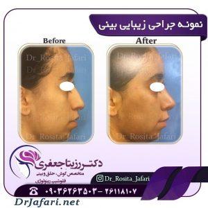 قبل و پس از جراحی رینوپلاستی