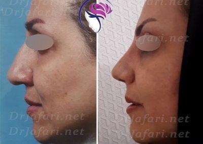 قبل و بعد جراحی بینی از نیمرخ