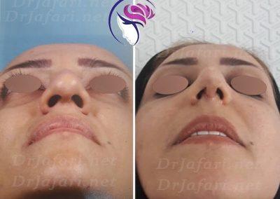 نمونه از قبل و بعد عمل بینی