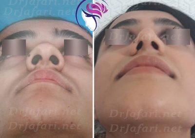 نمونه واقعی جراحی بینی