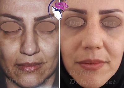 قبل و بعد عمل بینی یکی از مراجعین خانم