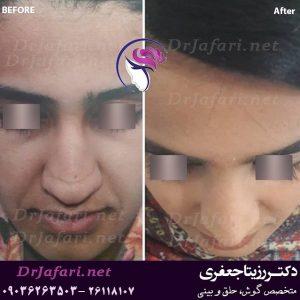 نمونه واقعی جراحی بینی یکی از مراجعین