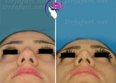 جراحی زیبایی بینی توسط دکتر جعفری