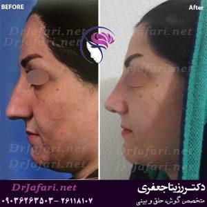 قبل و بعد از جراحی زیبایی بینی