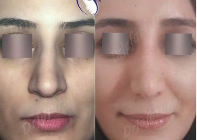 نتیجه جراحی بینی یکی از مراجعین از روبرو