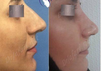 قبل از عمل و بعد از عمل بینی