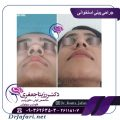 قبل و بعد عمل بینی استخوانی