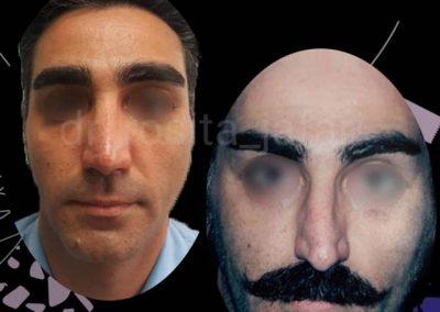 قبل و بعد عمل بینی مردانه