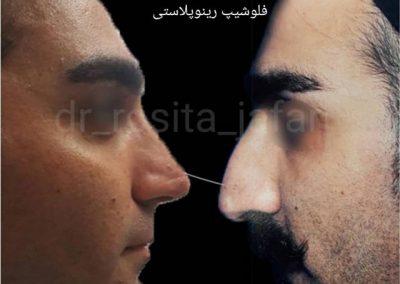 جراحی بینی مردانه از نیمرخ