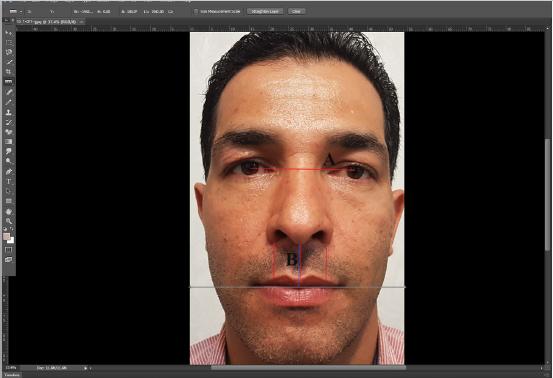 اثرات جراحی زیبایی بینی به روش باز روی موقعیت لب بالا از نیمرخ و نمای جلو