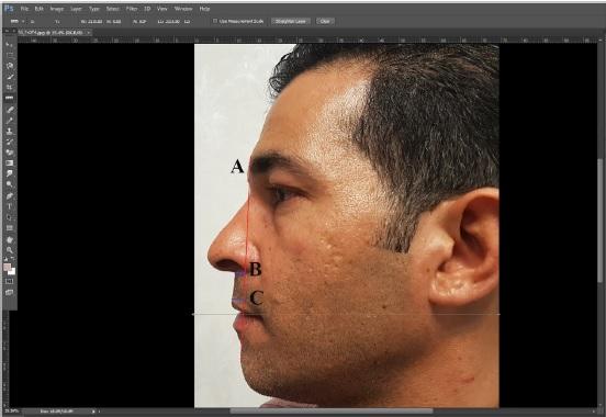 فاصله-مردمک-دو-چشم-از-نمای-نیم-رخ